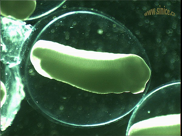Xenopus laevis - embryoXenopus Laevis Embryo